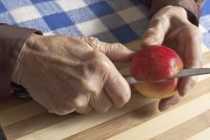 Arthritis-Rehab